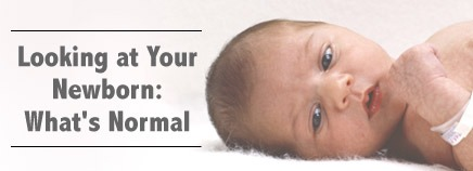 Τι πρέπει να περιμένουμε από ένα φυσιολογικό τελειόμηνο νεογέννητο;