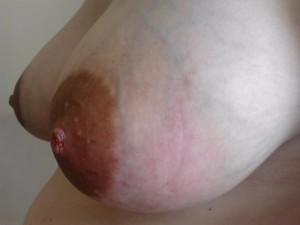 Μαστίτιδα – Πρόληψη και θεραπεία