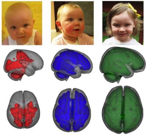 Ο εγκέφαλος των παιδιών που θηλάζουν παρουσιάζει πρώιμη ανάπτυξη